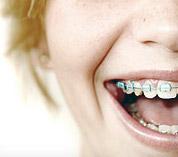 img-why-braces